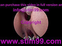 Nettles Ass Fisting Anal Insertion Nettles with Speculum